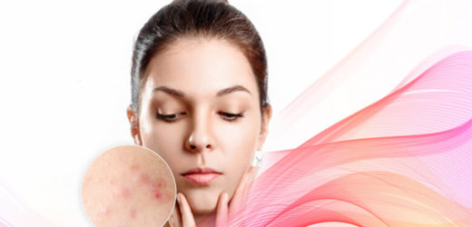 Top 6 Foods That Can Cause Acne: What To Eat For Clear Skin?