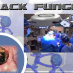 Black Fungus [Mucormycosis]: Major Symptoms, Treatment and How it is different from Skin based fungal infection